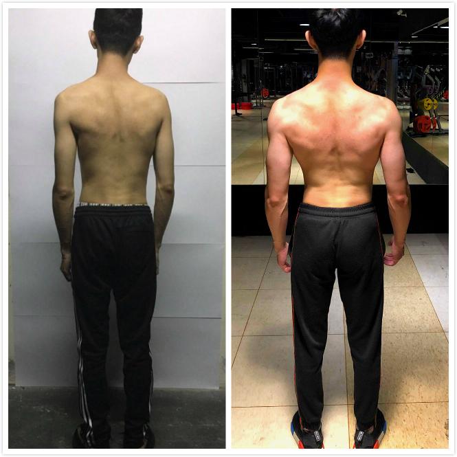 覺醒健身:【覺醒變身案例】從調整脊椎側彎到變壯之路