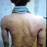 台中健身覺醒健身:【覺醒變身案例】肌肉張力平衡脊椎狀況